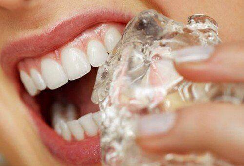 Khi bị nhức răng phải làm sao cho hết?