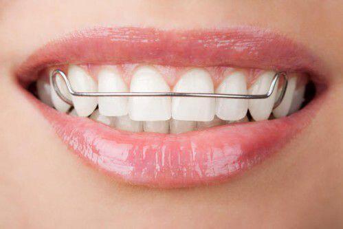 Sau niềng răng không đeo hàm duy trì được không ?