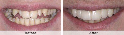 Khi nào bọc răng sứ phải chữa tủy răng ?