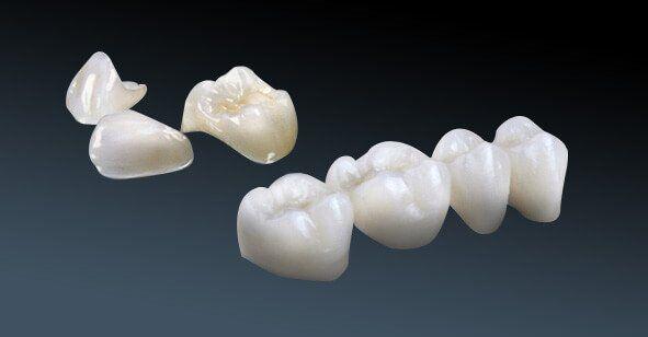 Khi nào nên bọc răng sứ Cercon HT?