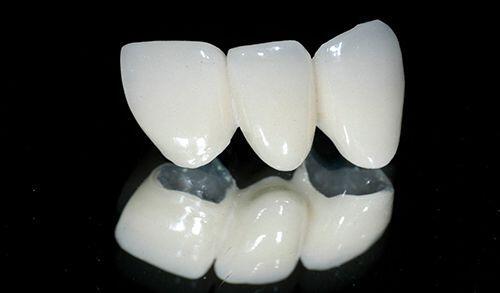 Khi nào nên bọc răng sứ kim loại?