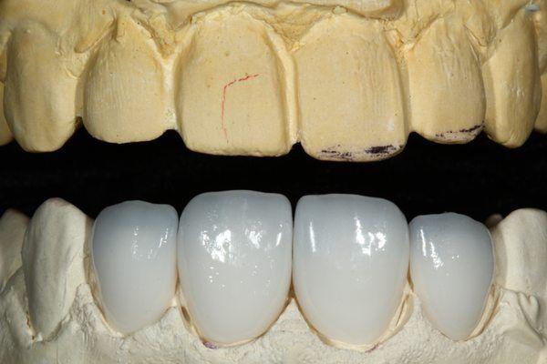 Khi nào nên bọc răng sứ