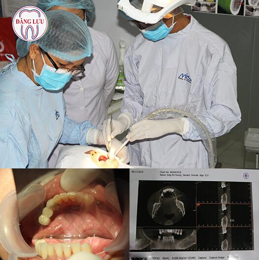 Khi nào nên cấy ghép Implant?