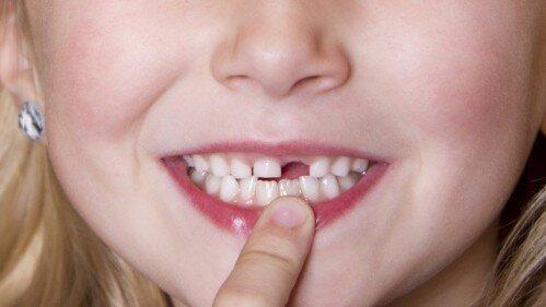 Khi nào nên thay răng sữa cho bé ?