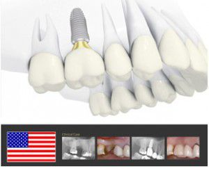 Khoe Nụ Cười Tỏa Sáng Với Phương Pháp Cấy Ghép Implant