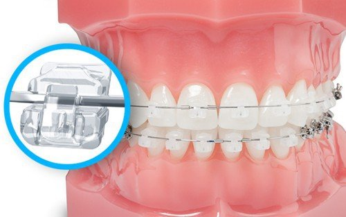 Không đeo hàm duy trì sau niềng răng có được không?