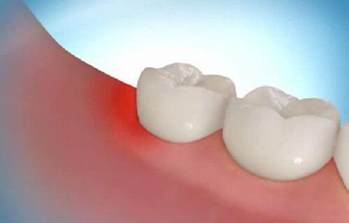 Không nhổ răng khôn mọc lệch có sao không ?