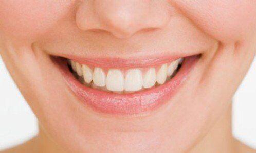 Khớp cắn chuẩn có phải niềng răng không?