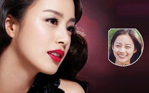 Kim Tae Hee lột xác nhờ niềng răng
