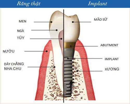 Những lợi ích có được khi cấy ghép implant 1