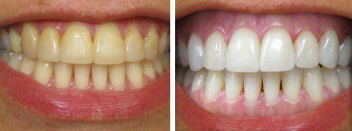 Màu sắc răng và sức khỏe răng miệng