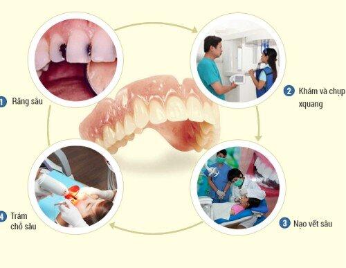 Giải pháp hữu hiệu cho răng sâu