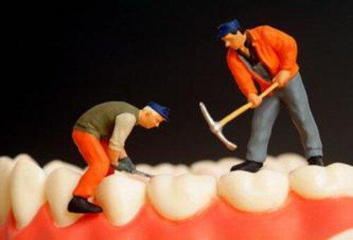 Trám răng có phải là giải pháp tối ưu cho răng sâu