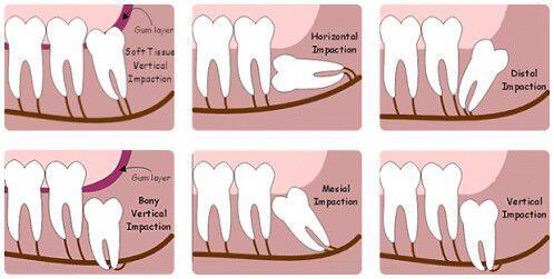làm gì khi bị đau do mọc răng khôn ?