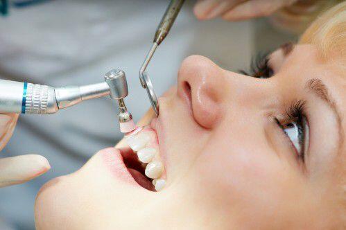 làm gì khi bị gãy răng ?