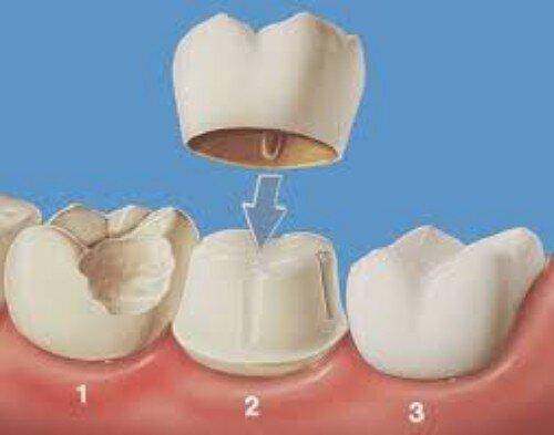 Làm gì khi bị nhức răng mòn men