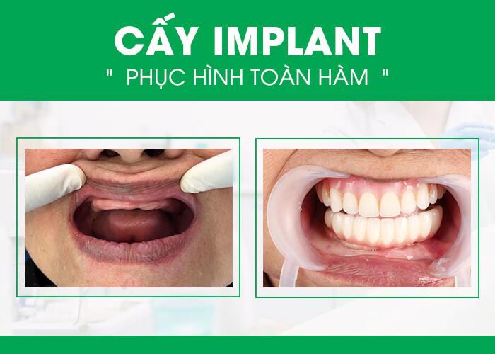 trồng răng Implant toàn hàm