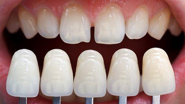 Làm mặt sứ Veneer cho răng thưa có hiệu quả không?