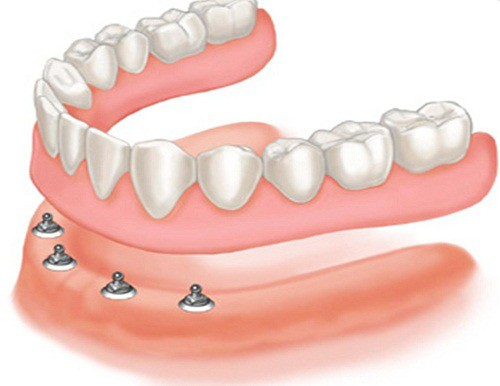 Làm răng giả nguyên hàm