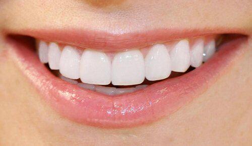 Làm răng sứ cercon duy trì được tối đa bao nhiêu năm