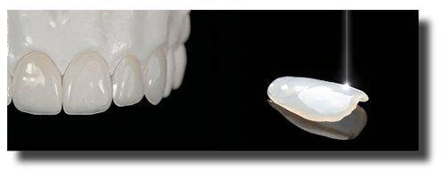 Làm răng sứ direct vener có đau không