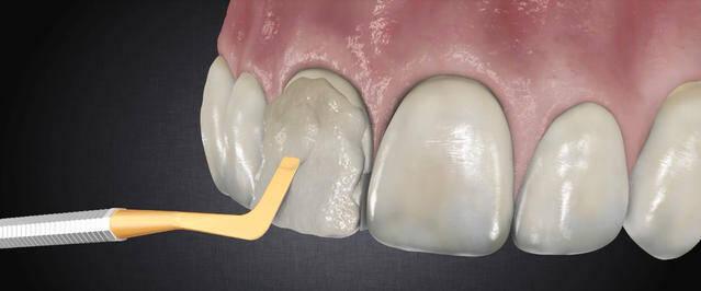 Làm răng sứ Direct Veneer ở đâu tốt?