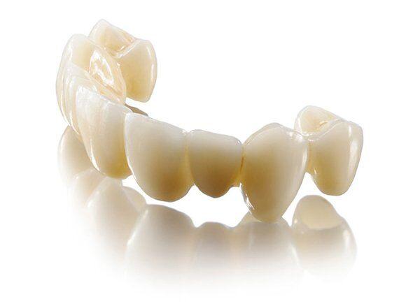 Làm răng sứ Lava Plus ở đâu tốt an toàn và hiệu quả?