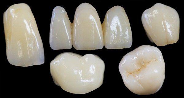 Thời gian làm răng sứ Zirconia mất bao lâu?