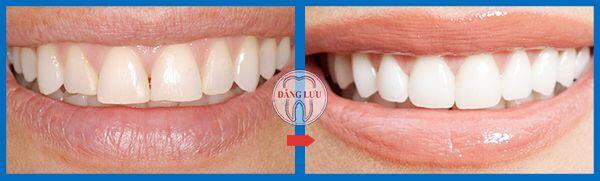 hình trước sau làm răng sứ