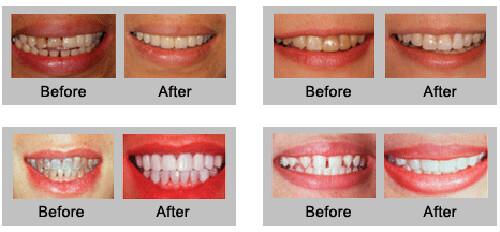 Làm răng thẩm mỹ bằng phương pháp bọc răng sứ