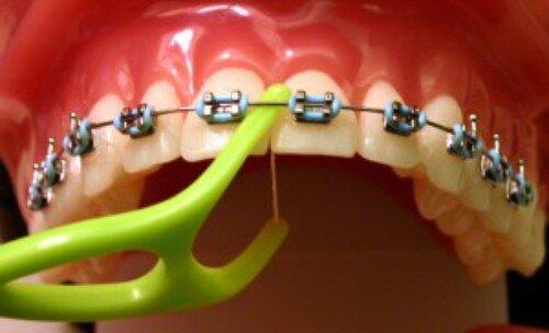 Làm sao để biết được mắc cài niềng răng bị tuột ra ?