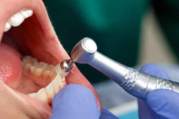 làm thế nào để loại bỏ cao răng