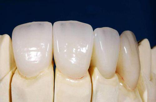Làm thế nào để nhận biết răng sứ Cercon?