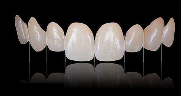 Làm thế nào để nhận biết răng sứ Veneer?