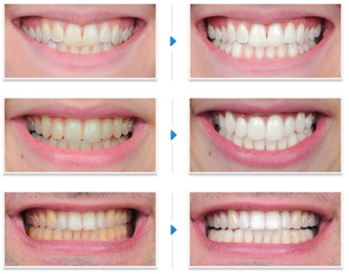 Làm trắng răng đơn giản bằng chanh và muối