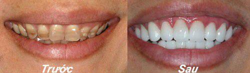 Chữa răng nhiễm màu nặng bằng phương pháp bọc răng sứ