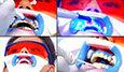 Quy trình tẩy trắng răng bằng Laser