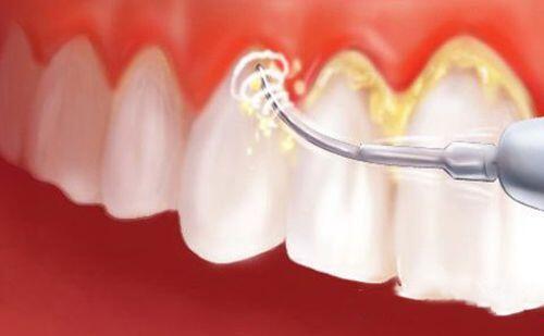 Lấy cao răng an toàn tại nhà