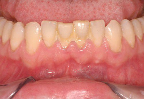 Nguyên nhân khiến răng bị mòn mặt nhai
