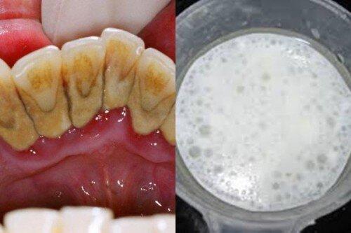 Lấy cao răng hiệu quả và đơn giản tại nhà