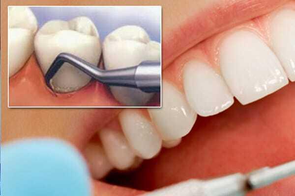 lấy cao răng phòng bệnh viêm nha chu