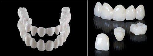 loại răng sứ phổ biến nhất hiện nay