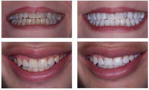 tại sao sau khi tẩy trắng răng lại bị ê buốt