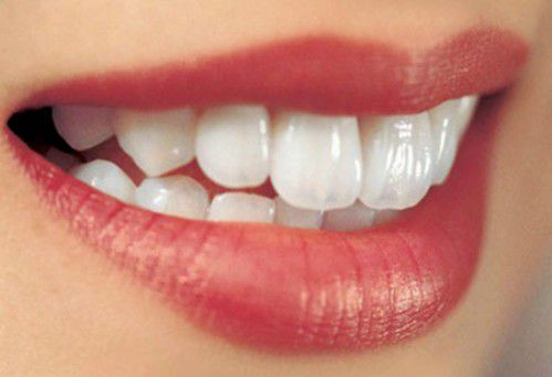 Cách làm trắng răng an toàn