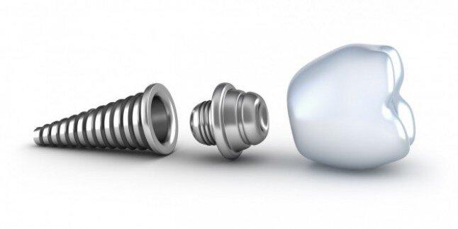 Lợi ích của cấy ghép implant so với bọc răng sứ