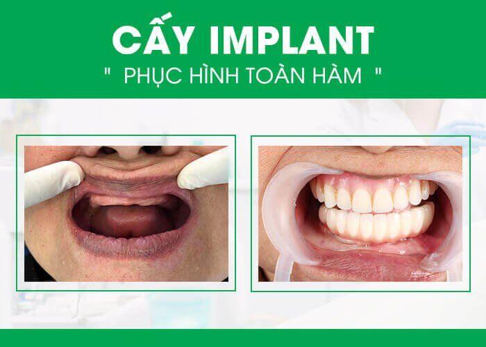 trồng răng Implant có lợi ích gì