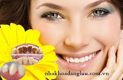 Dấu hiệu và triệu chứng bệnh viêm chân răng
