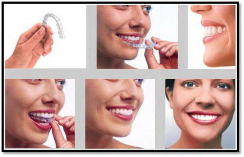 lợi ích của việc nắn chỉnh răng