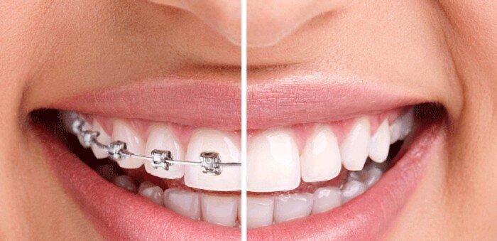 lợi ích từ việc niềng răng