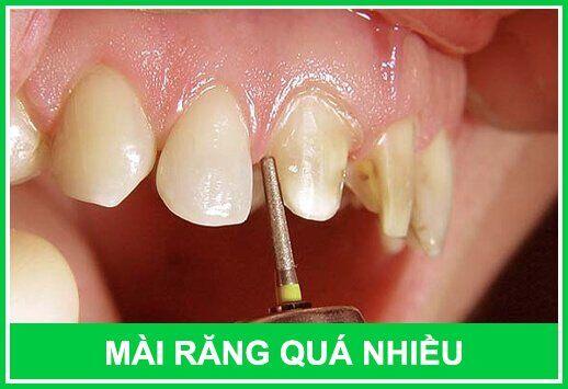 nguyên nhân khiến răng bị viêm tủy sau khi bọc sứ